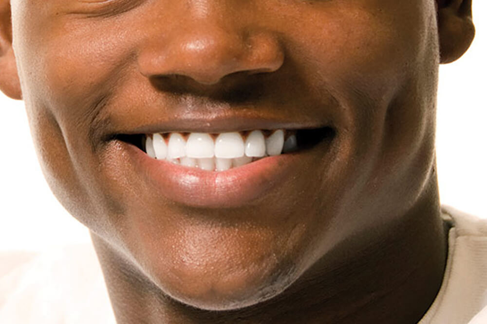 Guard Your SMILE thumbnail image